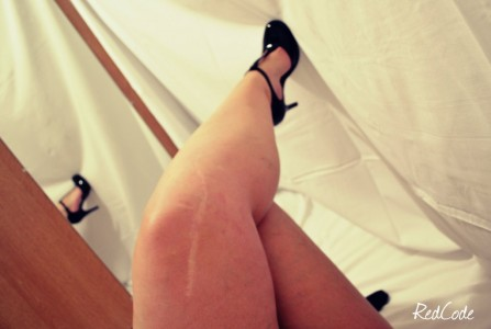 Cicatrice  pas sexy
